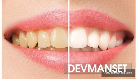 Dişlerin Renginin Değişmesinin Nedenleri ve Diş Rengini Beyazlatma Teknikleri